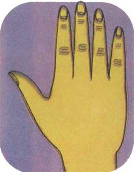 Το κωνικό χέρι